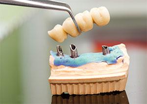 Leistung Implantologie