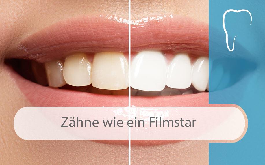 Ästhetische_Zahnheilkunde_Tipps_Image
