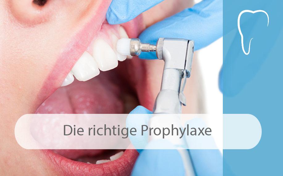 Das_A_und_O_für_gesunde_Zähne_ist_die_richtige_Prophylaxe