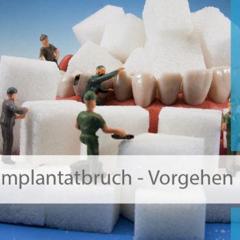 Implantatbruch_was_tun_Image