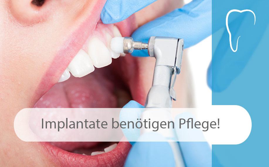 Pflege_und_Prophylaxe_so_schützen_Sie_Ihr_Zahnimplantat_Image