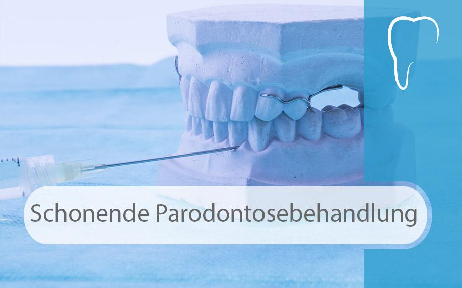 Zahnerhaltung_von_Grund_auf_schonende_Parodontosebehandlung_Image