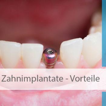 Zahnimplantate_Vorteile_Image