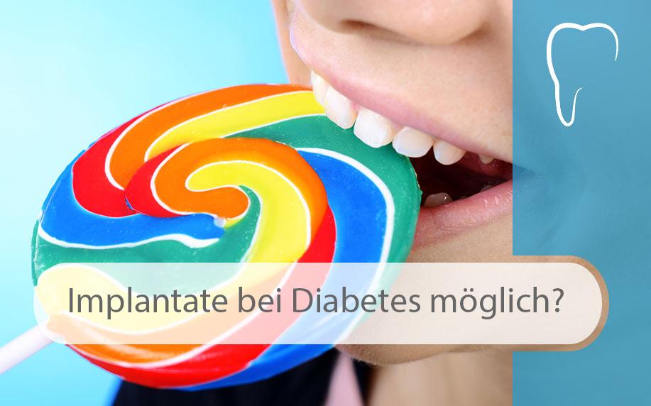 Zahnimplantate_bei_Diabetes_Image
