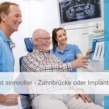 Featured Image_zahnhannover_bruecke_oder_implantat