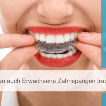 Featured Image_zahnhannover_erwachsene_zahnspangen_tragen