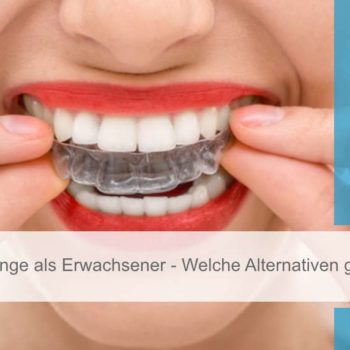 Featured Image_zahnhannover_zahnspange_erwachsener_alternativen